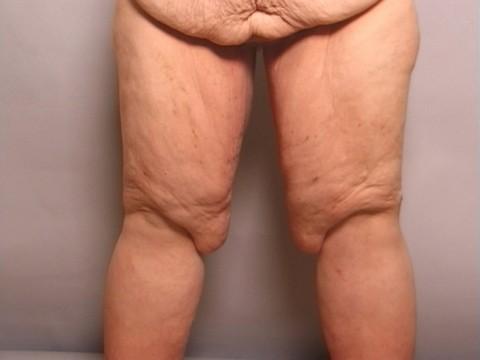 thigh lift patient