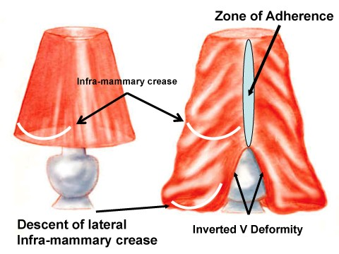 upper body lampshade example
