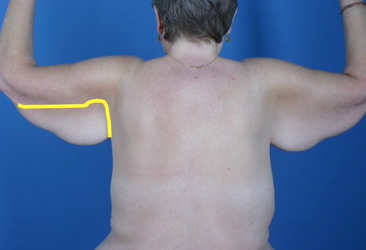 arm lift example