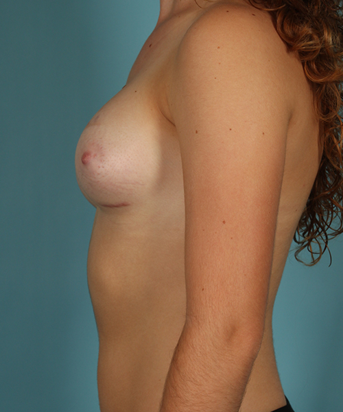 Breast Augmentation Case