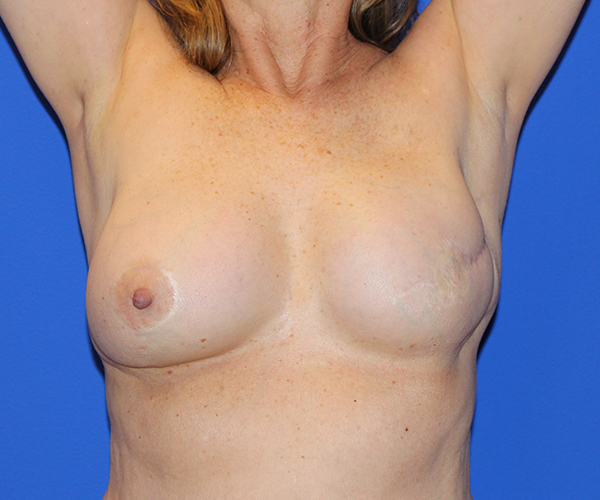 Breast Reconstruction Case