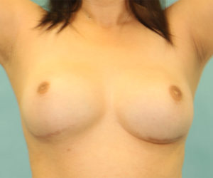 Breast Revision Case