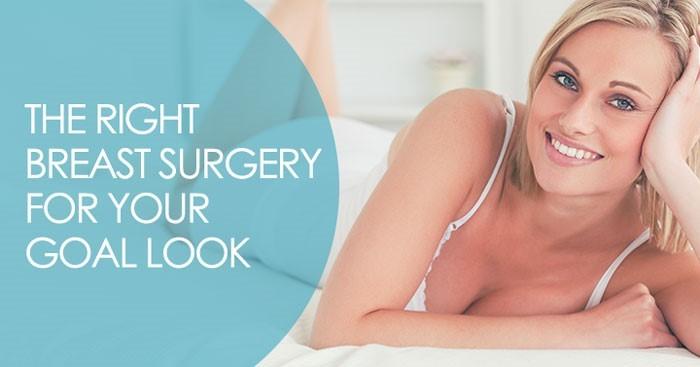 blog breast surgery woman posing