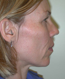 Facelift / Neck Lift Patient